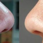 Tips Menghilangkan Bintik Hitam Pada Muka