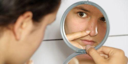 Masalah Muka Berjerawat Bagi Remaja